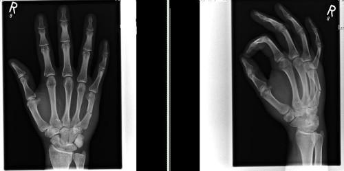 Переломе пальца на руке