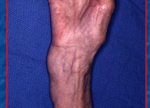 Как правильно лечить переломы лучевой кости со смещением