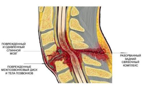 Какие могут быть причины перелома позвоночника