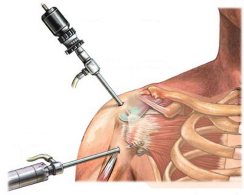 Разрыва связок плечевого сустава