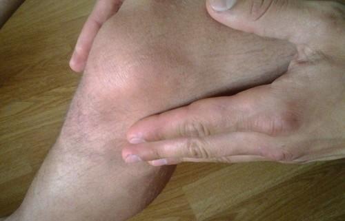 Синовит коленного сустава, его виды и особенности терапии