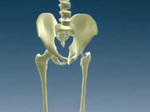 Причины возникновения остеоартроза тазобедренного сустава, симптомы и лечение