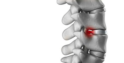 Выявления компрессионного перелома позвоночника