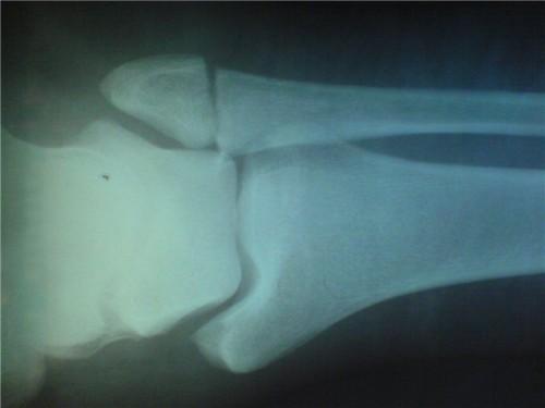 Перелом лодыжки