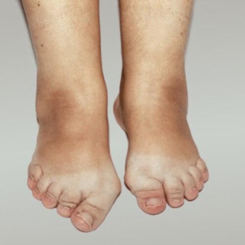артроз суставов стопы диета