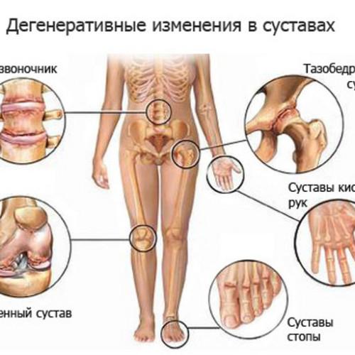 Основные причины болей в суставах