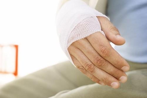 Перелом руки реабилитация