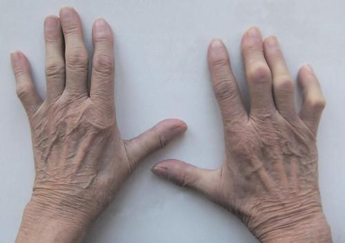 В чем заключается диагностика ревматоидного артрита