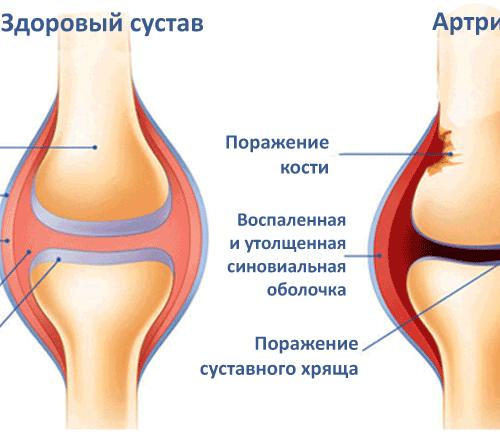 болят суставы на 9 месяце