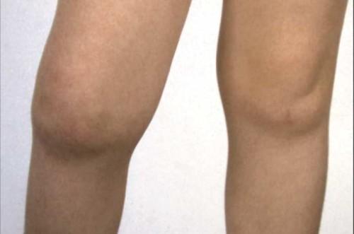 Особенности артритов у детей: виды, причины, симптомы, лечение