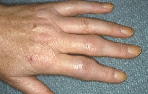 Симптомы и методы лечения ревматоидного артрита