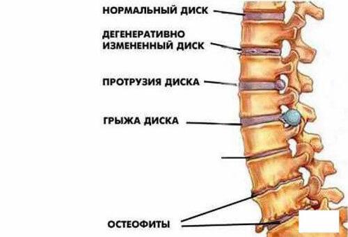 Может ли помочь больному ортопедический пластырь Pain Relief